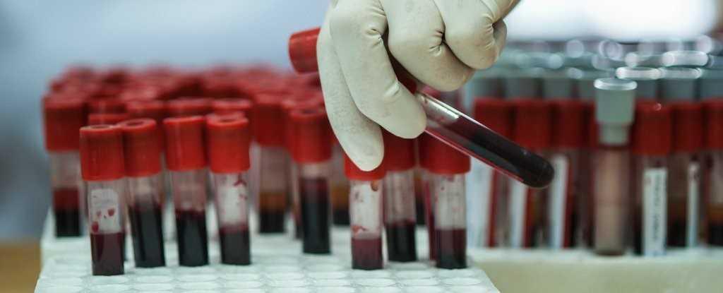 نمونه گیری خون