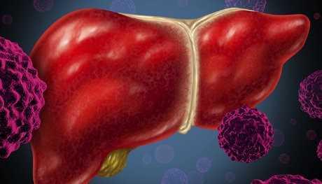 هپاتیت سی