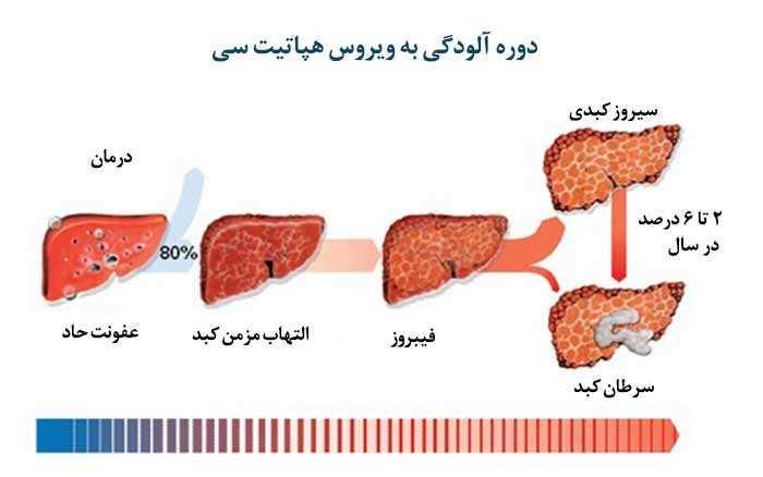 آزمایش هپاتیت و کبد