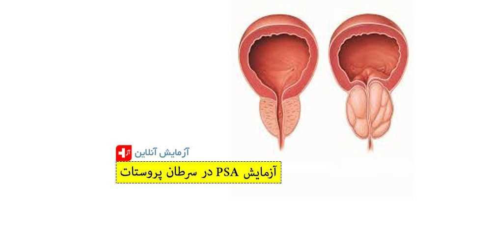 آزمایش PSA
