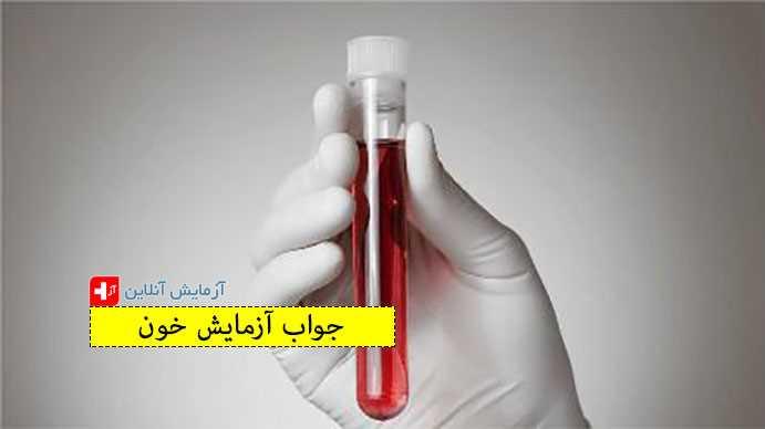 جواب آزمایش خون