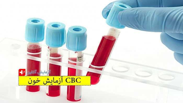آزمایش خون CBC