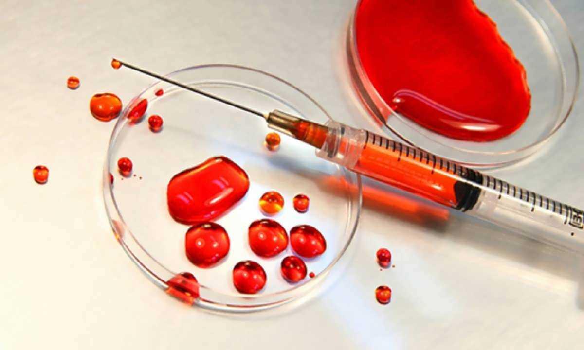 آزمایشات ویروس های ایدز ژنتیکی