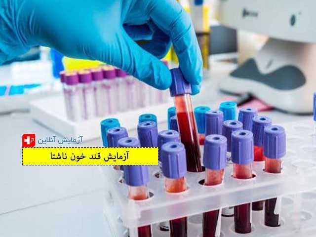 آزمایش قند خون ناشتا