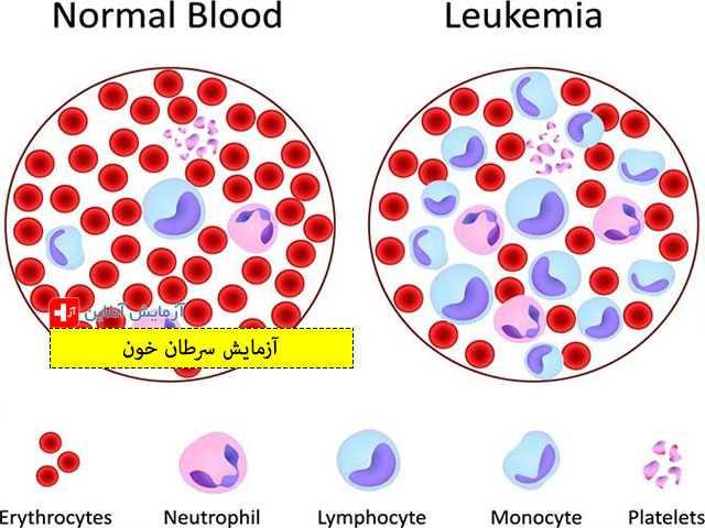 آزمایش سرطان خون