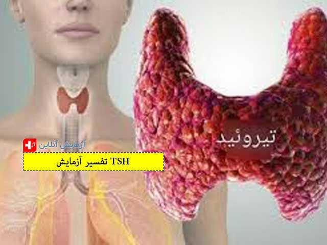 تفسیر آزمایش TSH