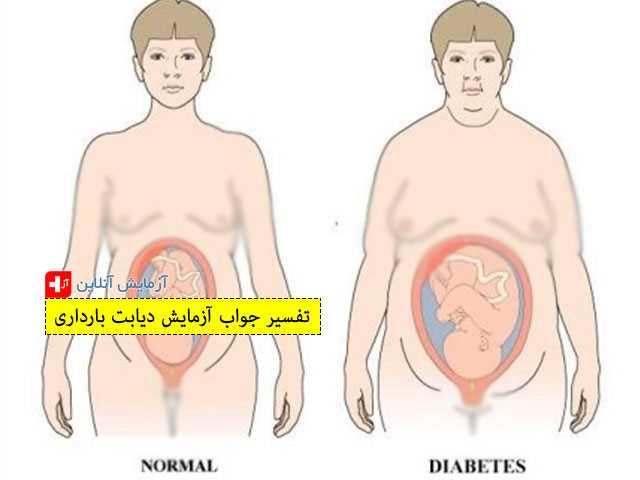 تفسیر جواب آزمایش دیابت بارداری