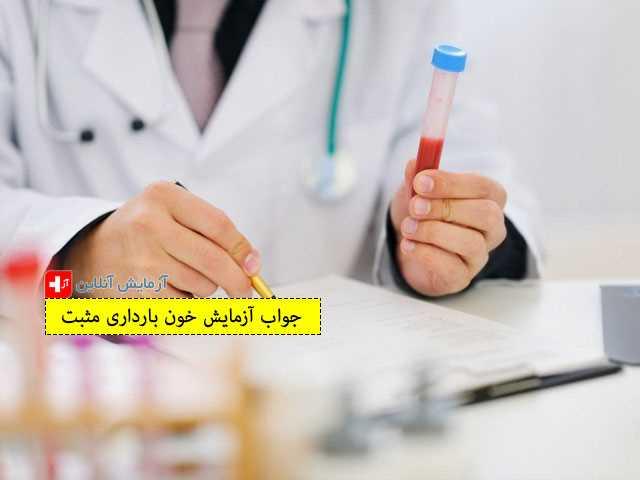 جواب آزمایش خون بارداری مثبت