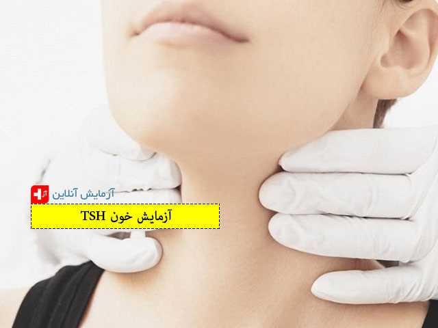 آزمایش خون TSH