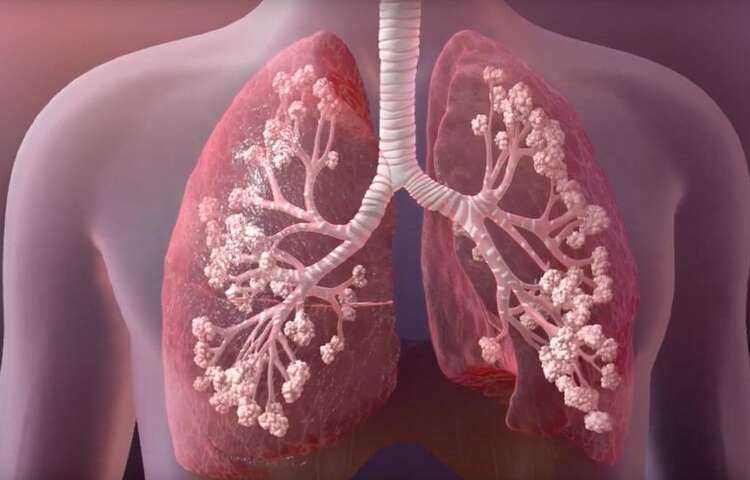 فیبروزکیستیک ریه