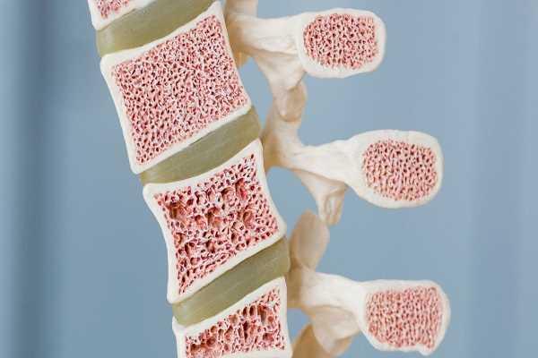 نمونه برداري از مغز استخوان