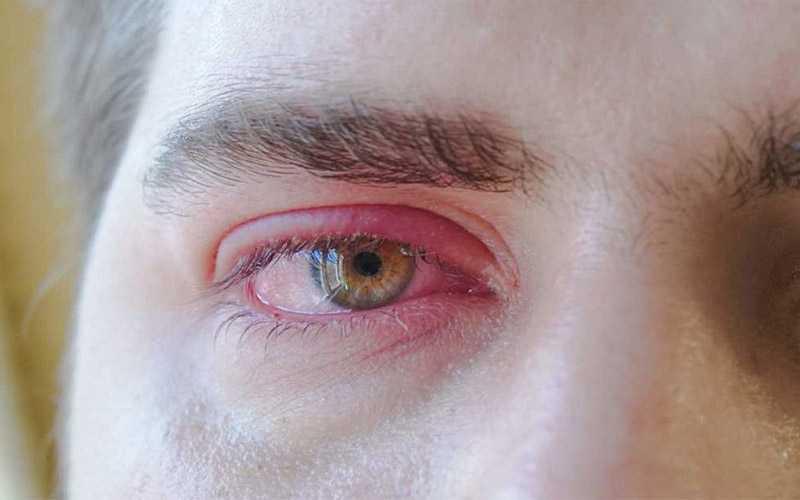 بلفاریت چیست و چگونه درمان می شود