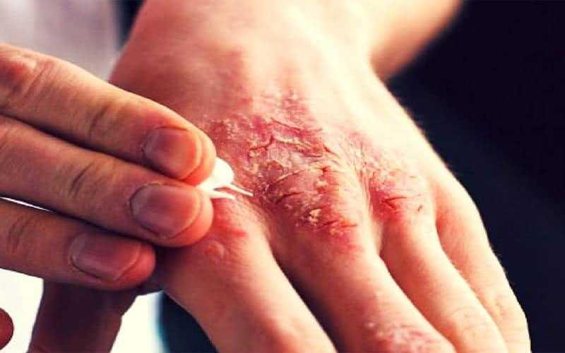بیماری گال چیست