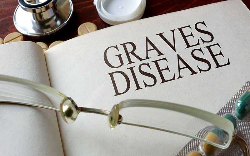 بیماری گریوز چیست