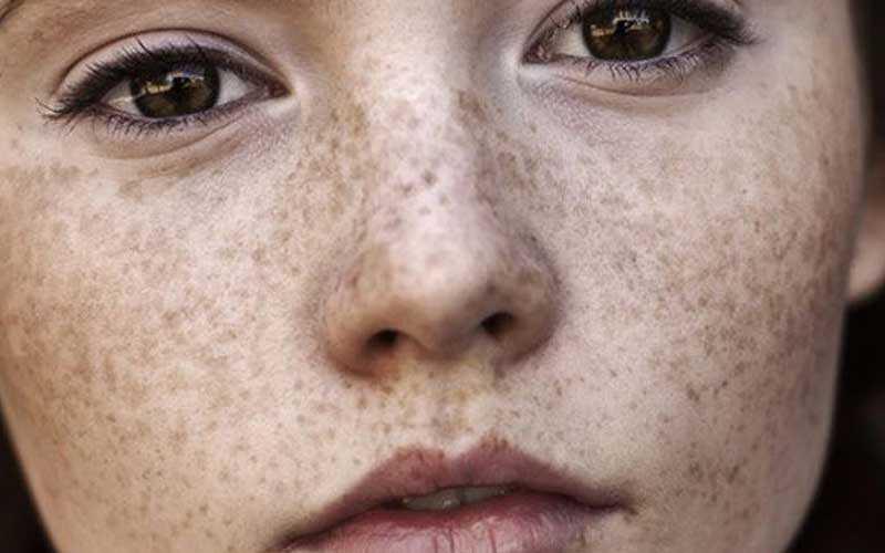 لکه های پوستی چیست
